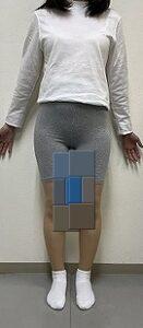 X脚矯正のSTYLEX的筋トレ